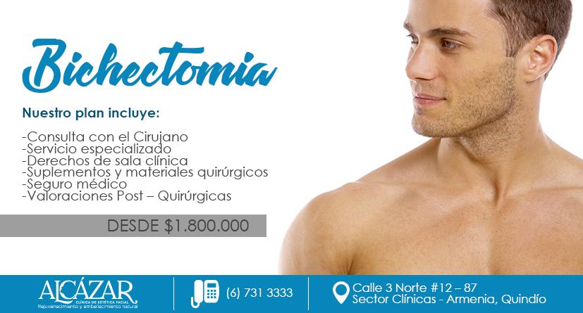 Bichectomia 2